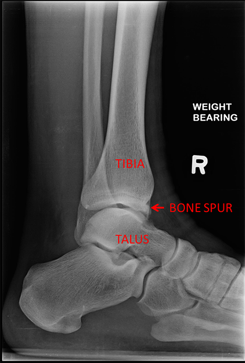 Bone spur on X-ray