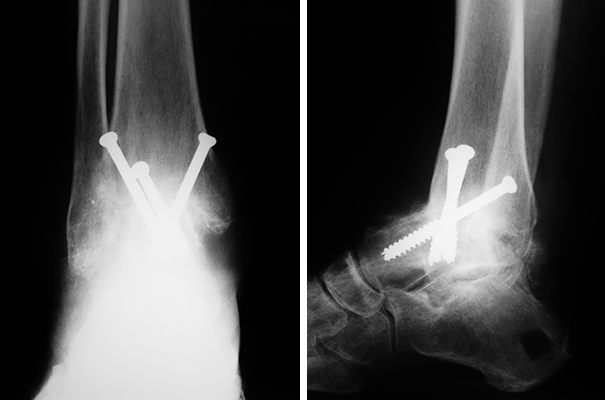 Ankle Fusion X-rays