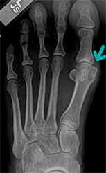 X-ray image of a bunion before surgery