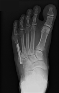 Fifth metatarsal fracture surgery