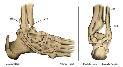 High Ankle Ligaments