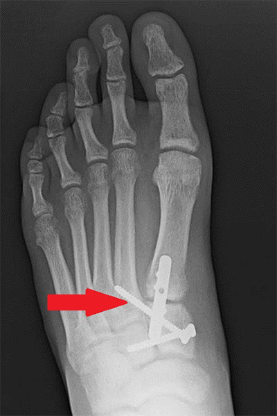 X-ray after Lisfranc Surgery