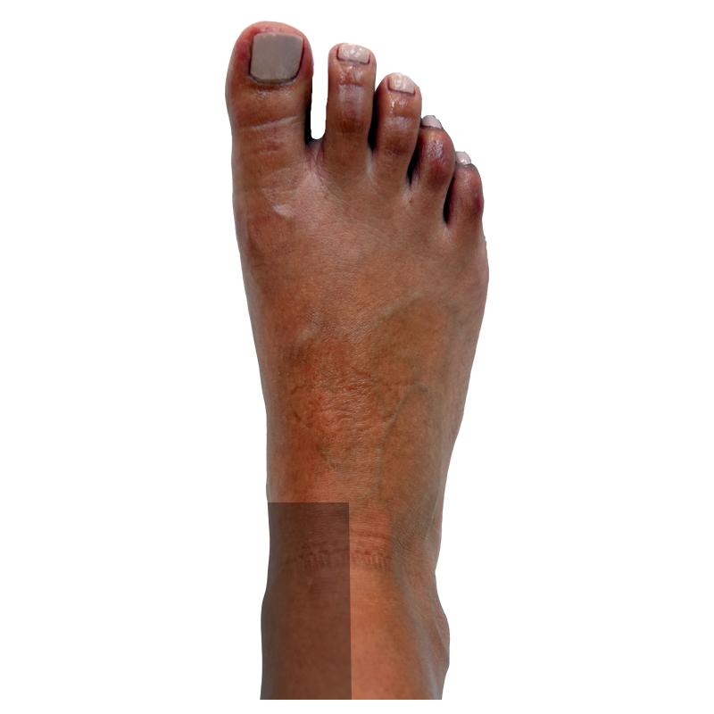Dorsal-Left Side Ankle