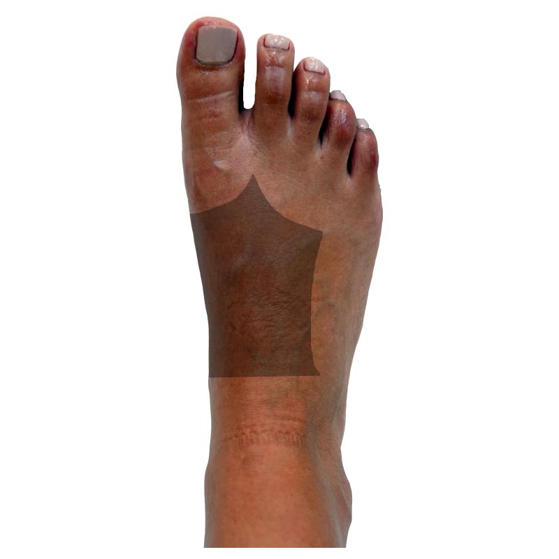 Dorsal-LeftSideMidfoot