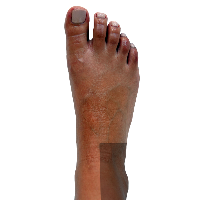 Dorsal-Right Side Ankle