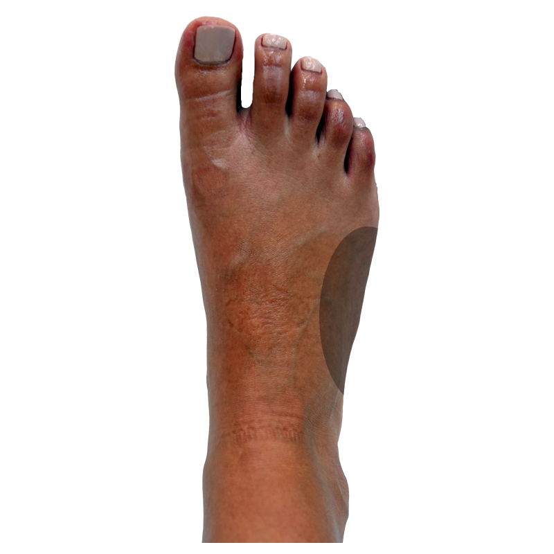 Dorsal-Right Side Midfoot