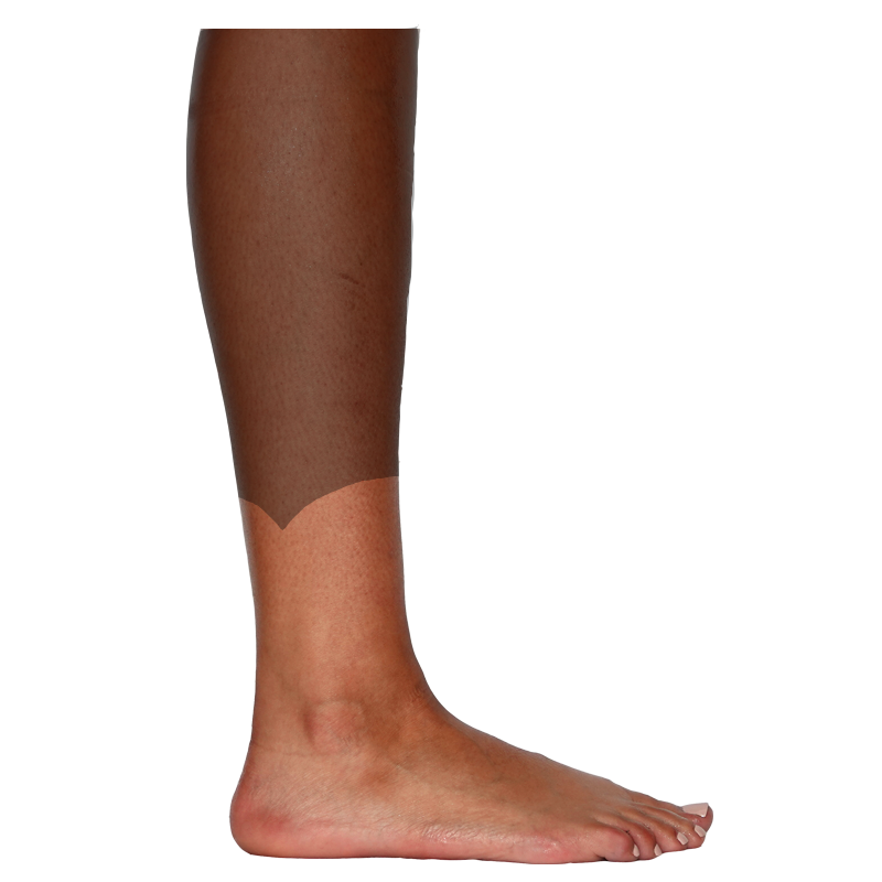 Lateral-Calf