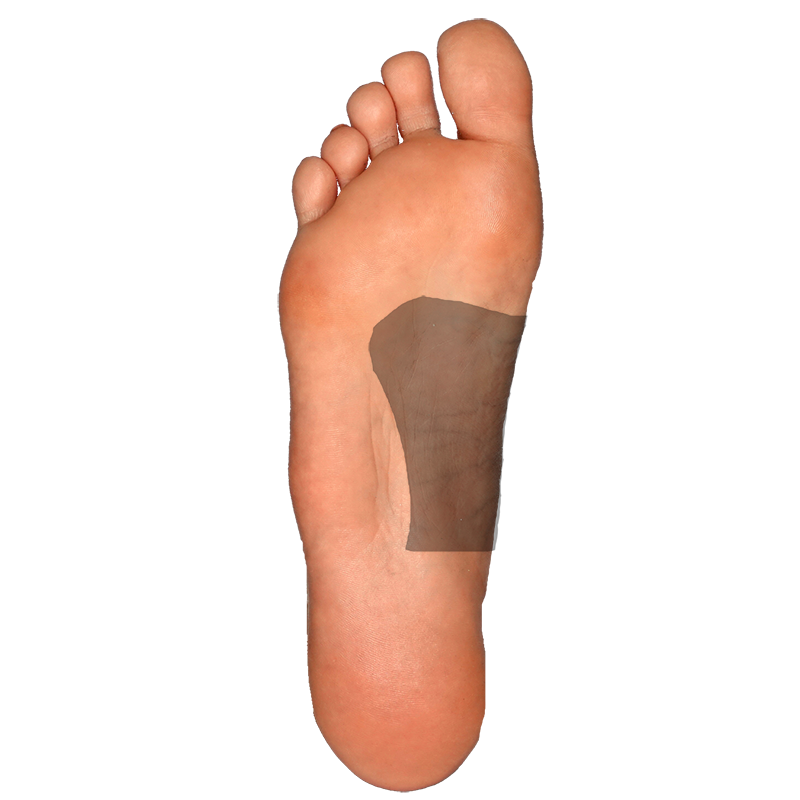 Plantar-Arch Right Side