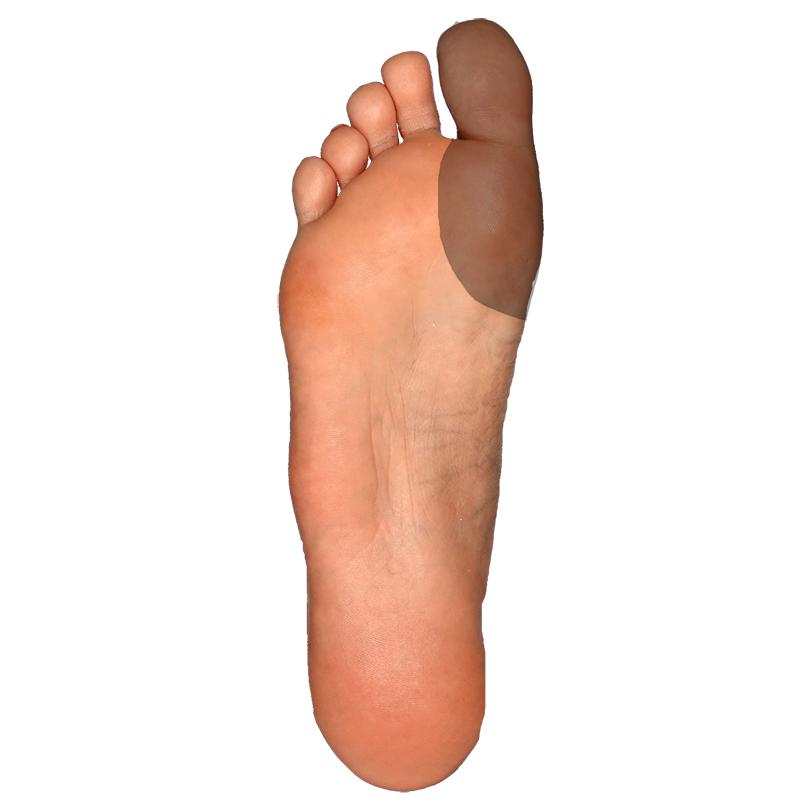 Plantar-Big Toe