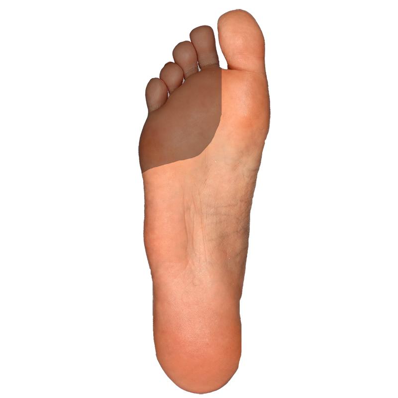 Plantar-Smaller Toes